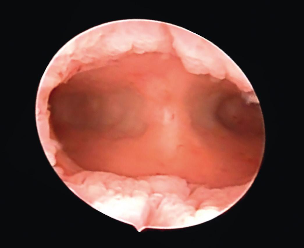 endometrial cancer on hysteroscopy