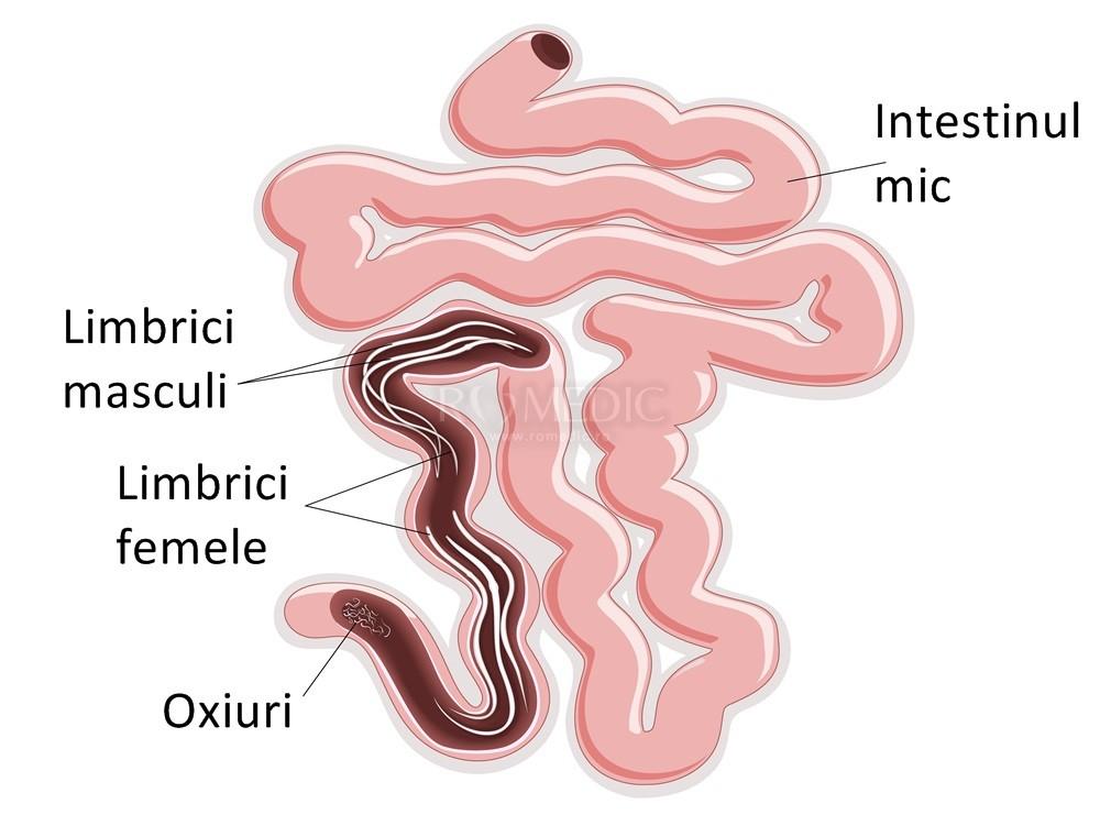 simptome vierme biliare