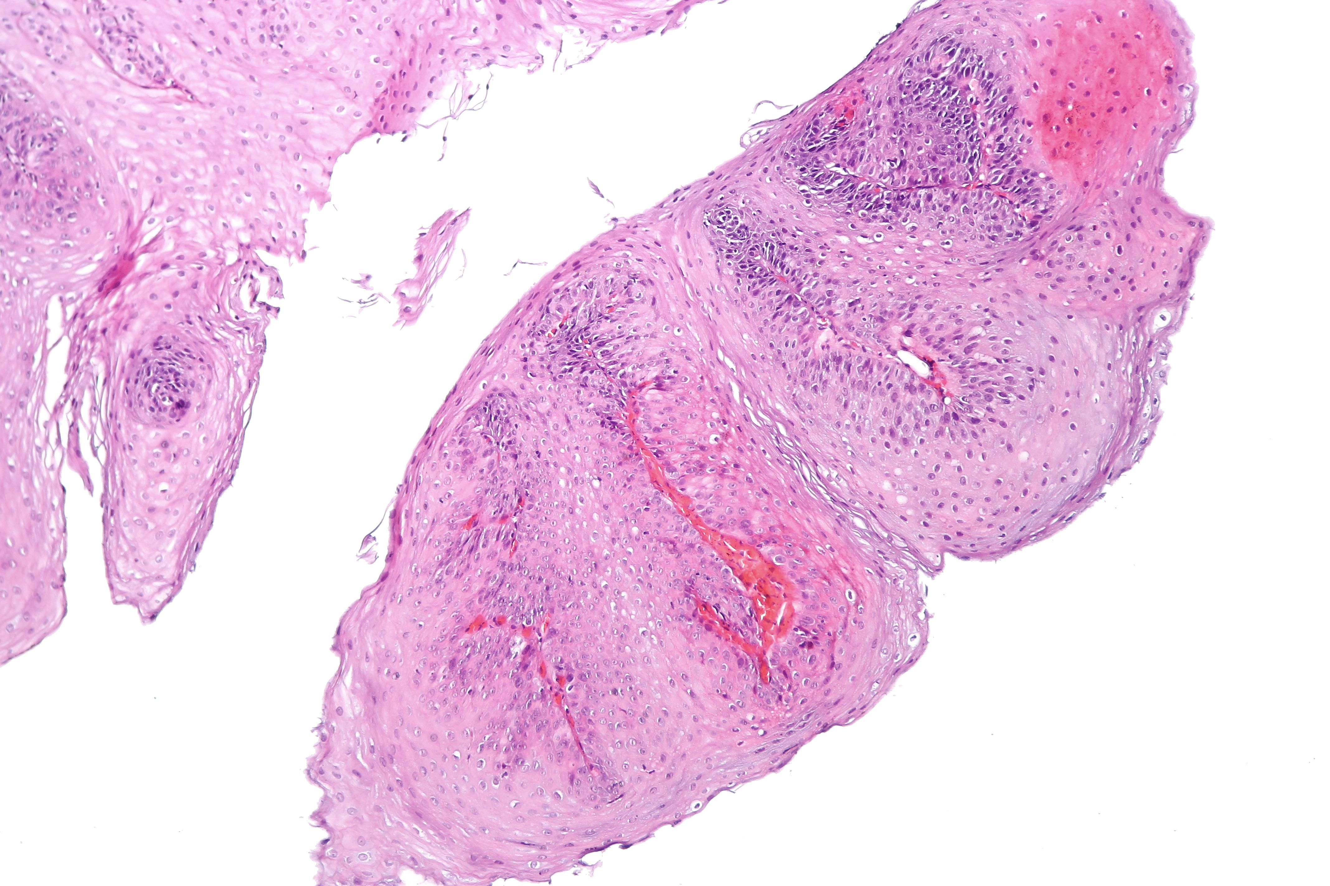 Squamous papilloma meaning in hindi. Quali sono i sintomi del papilloma virus