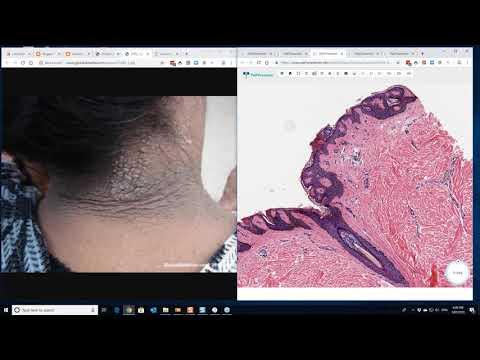 hemilphage vindecă paraziții
