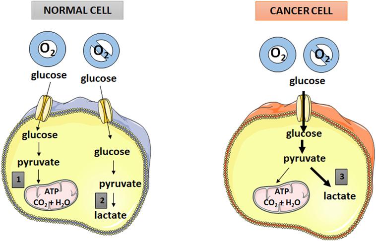 metastatic cancer glucose pastilele sunt ieftine de la viermi