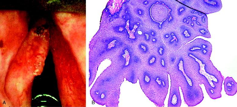 laryngeal papilloma with dysplasia)