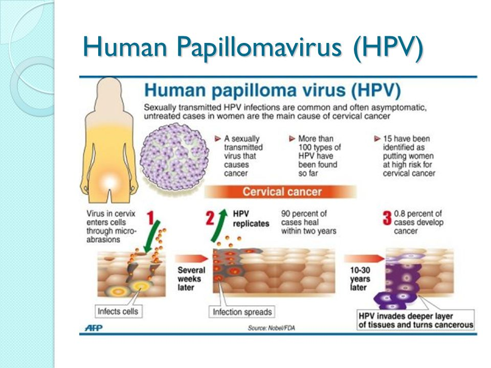 can having hpv cause cancer)