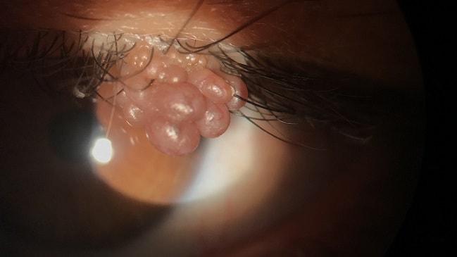 Papiloma tumor benigno - divastudio.ro