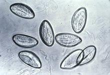 kindermadenwurm( enterobius vermicularis)