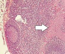 neuroendocrine cancer remission