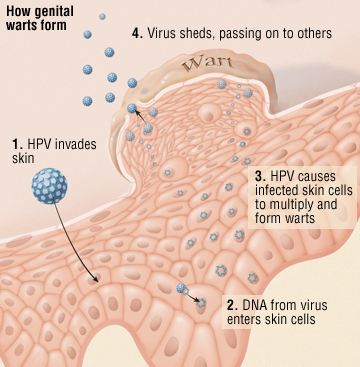 Hpv that causes genital warts does not cause cancer