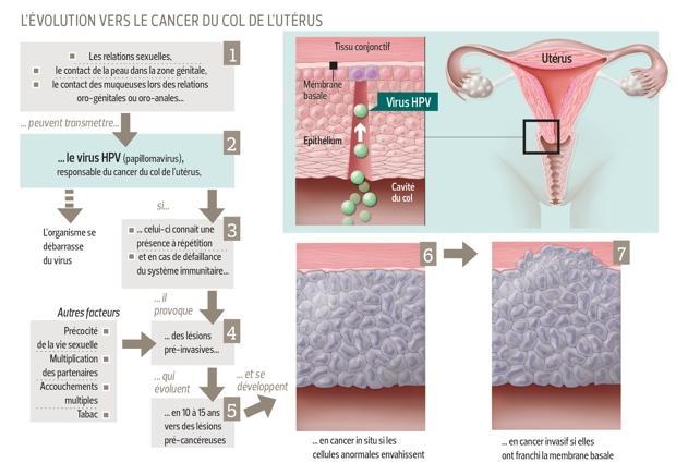 Traitement papillomavirus stade 1 - Cancer la san mana umflata
