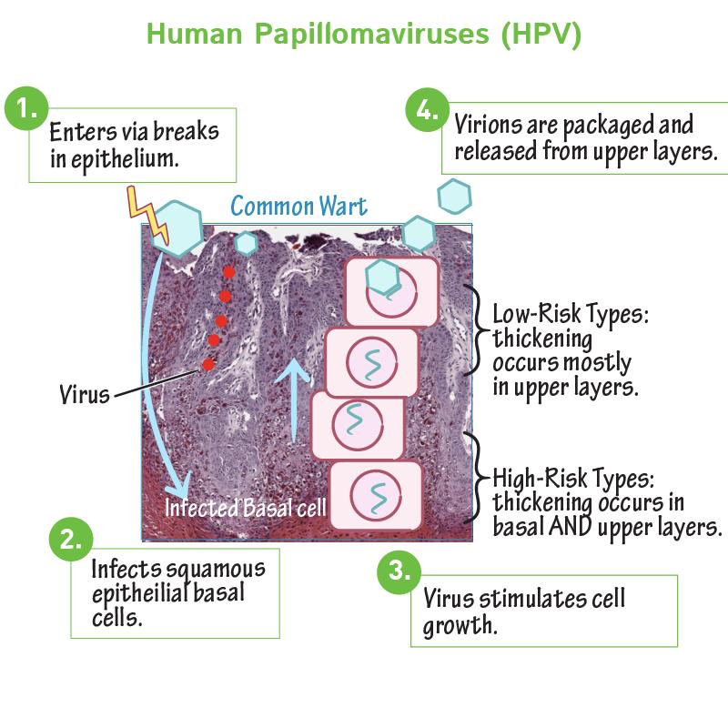 human papillomavirus hpv osmosis
