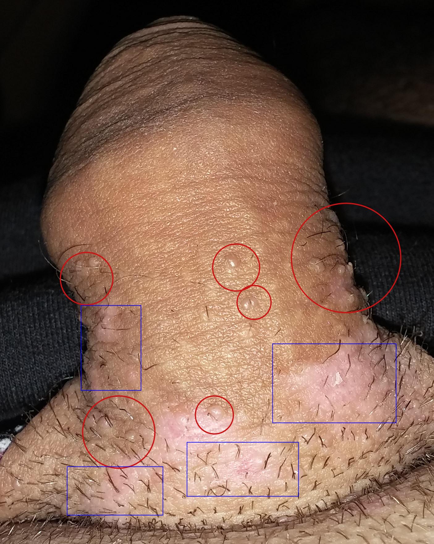 soigner papillomavirus chez l homme)