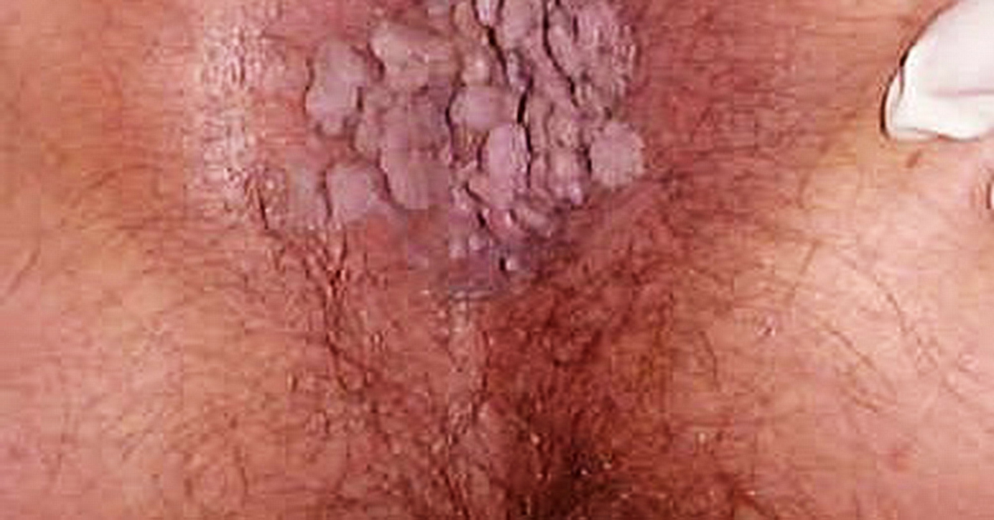 papilloma virus esterno