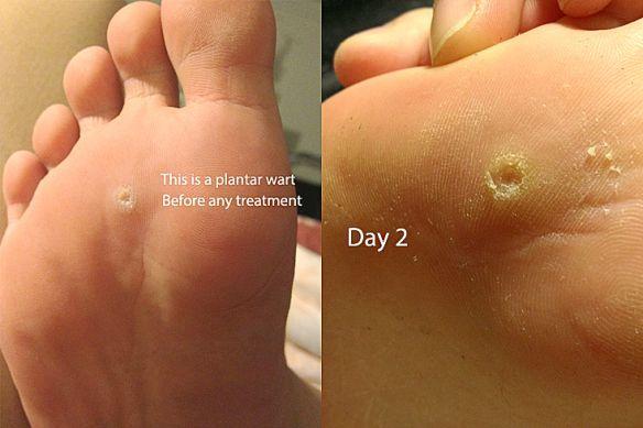 papilloma foot removal)