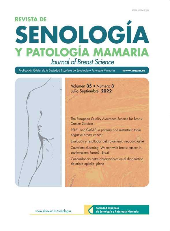 papiloma intraductal de mama tratamiento