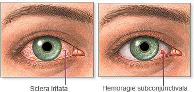 Medicament parazit pentru ochi, Prospect Eskazole mg x 12 compr.   Catena