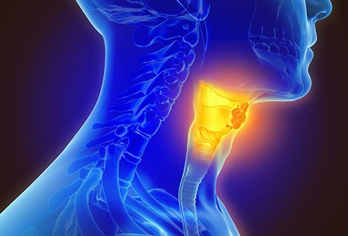 How fast does hpv throat cancer grow