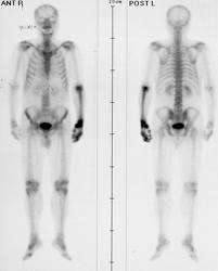 cancer metastaza osoasa