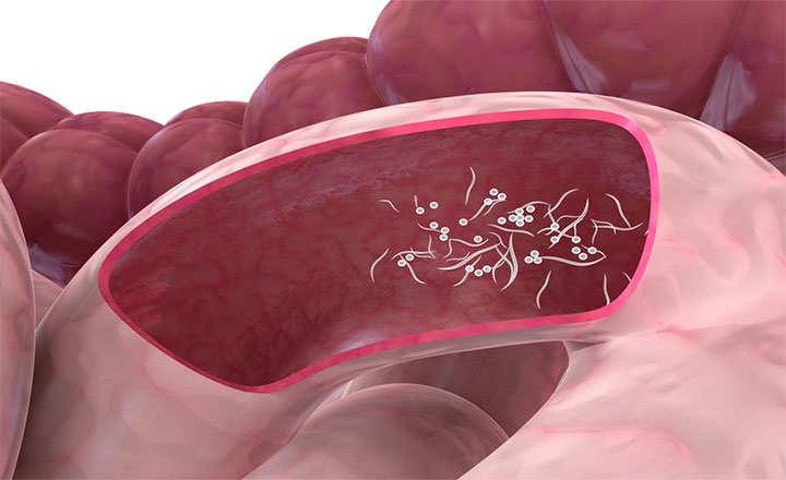 drogul este fundul tuturor paraziților din organism cancer la gat cauze si simptome