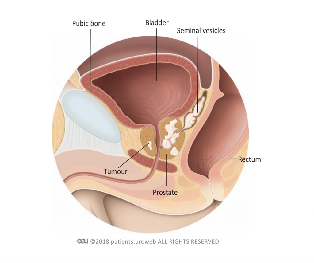 rectal cancer with prostate invasion)