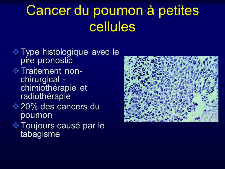 cancer neuroendocrine du poumon)