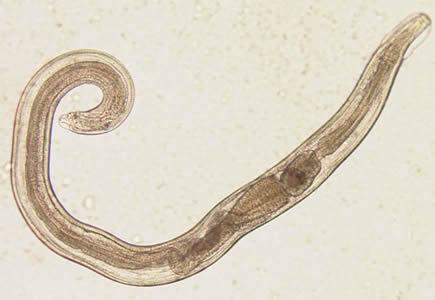 Penyakit enterobius vermicularis. Свежие записи