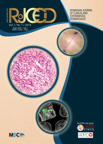#ASCO19. Rezultate pozitive ale imunoterapiei și terapiei țintite în cancerul mamar