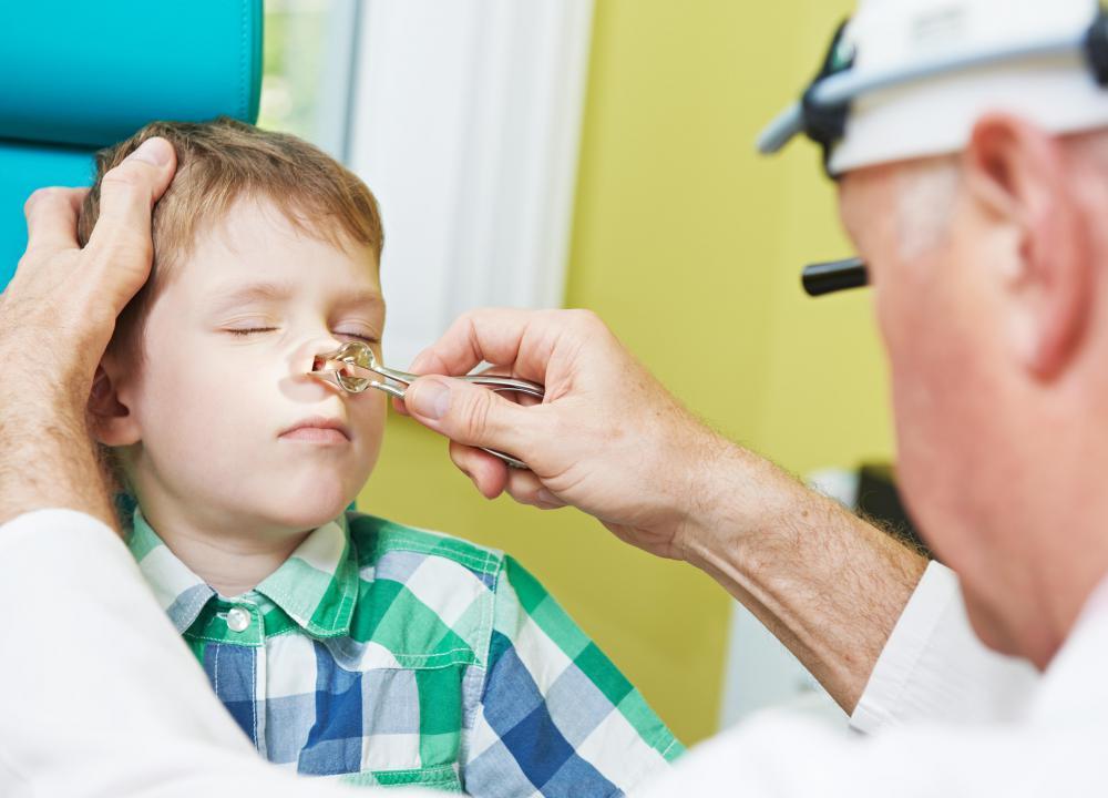 sinonasal papilloma treatment)