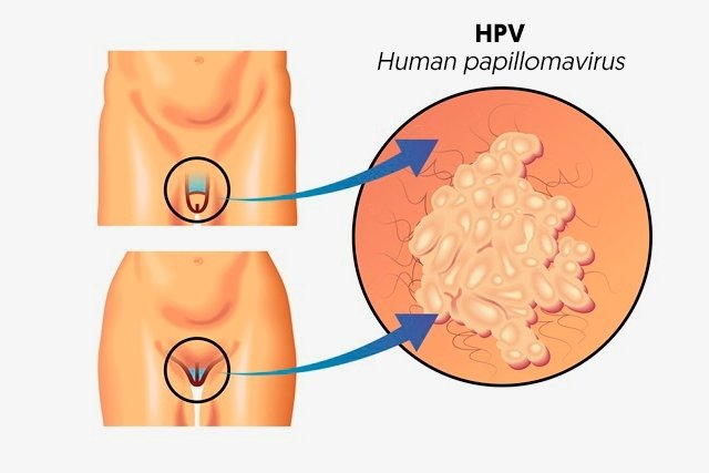 hpv virus infection symptoms)