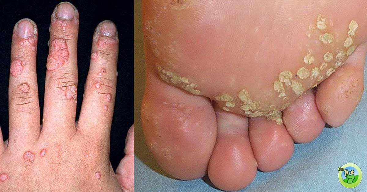 hpv warts between toes