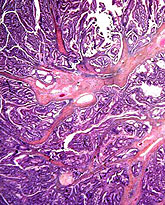 rectal cancer histopathology neuroendocrine cancer genetic