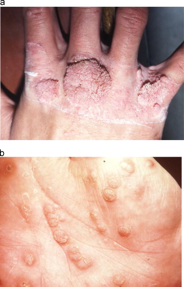 human papillomavirus infection on hands
