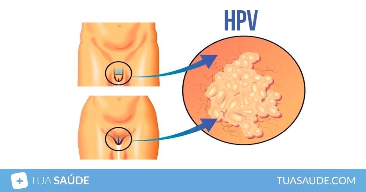 papilloma virus uomo periodo incubazione