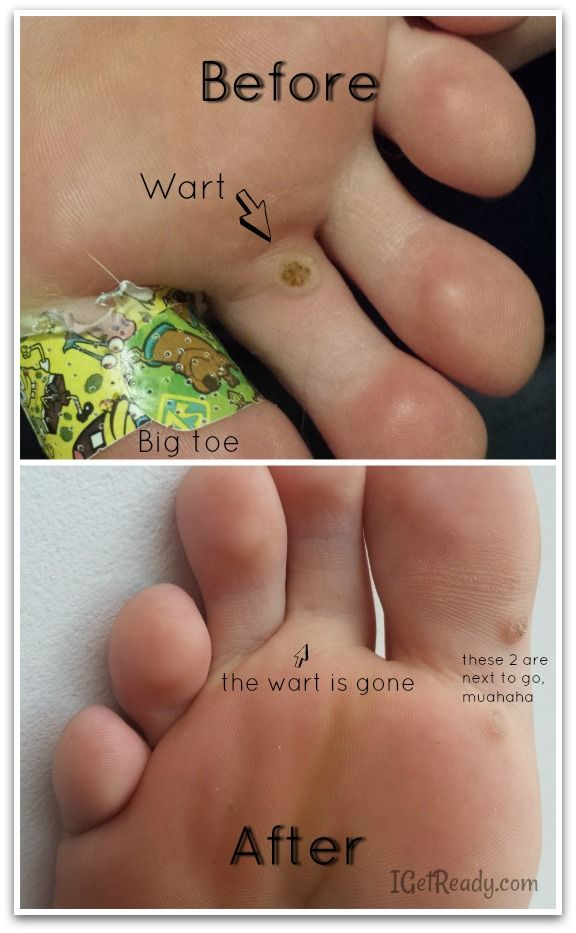 wart on left foot icd 10)