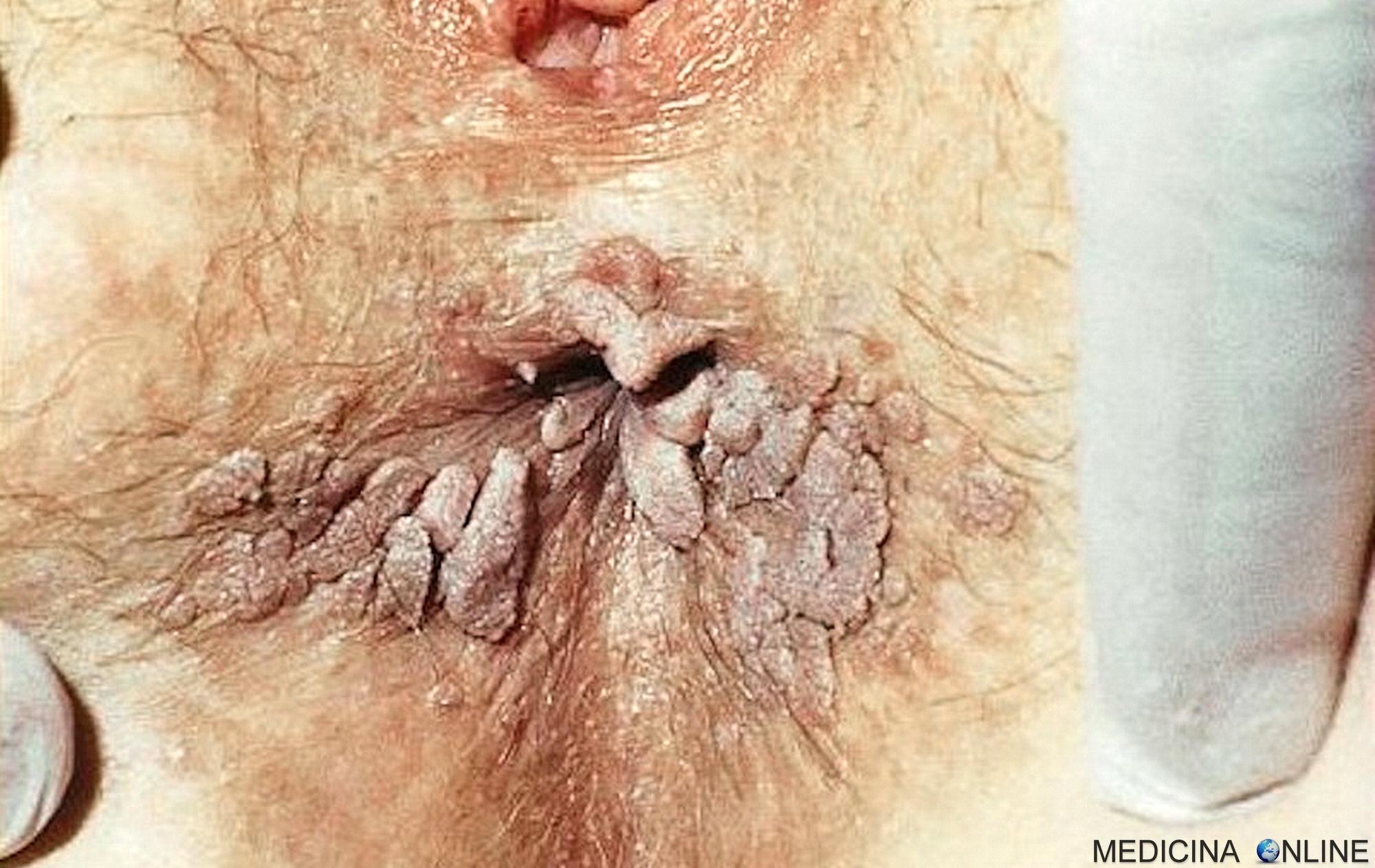 Papilloma i sintomi, Înțelesul