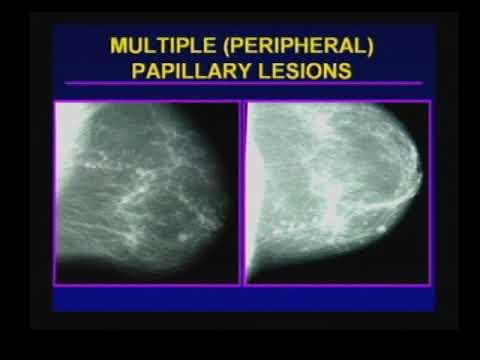 papillary lesion definition