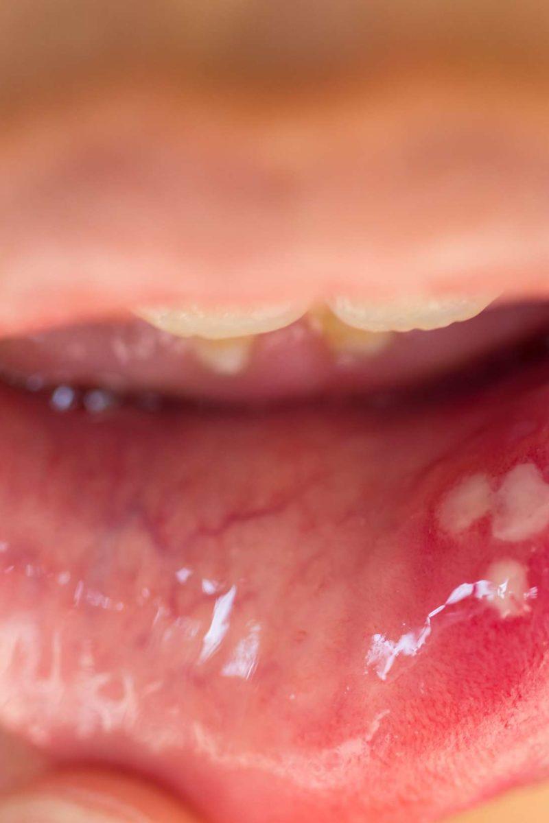 human papillomavirus infection tongue)