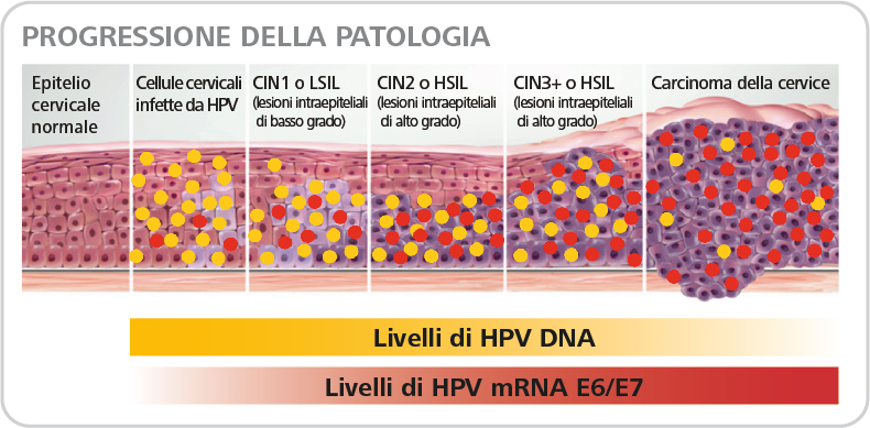 Hpv cancer signs - Cancerul din justitie