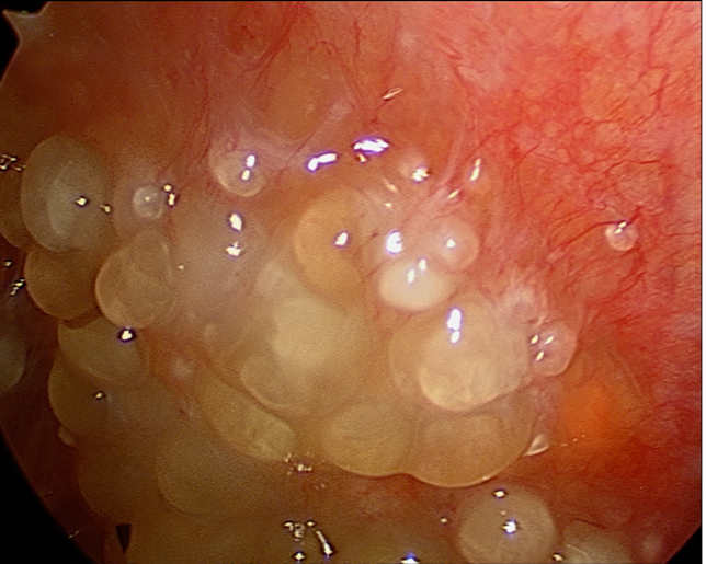 Profilul de risc clinic asociat cancerului ovarian Peritoneal cancer cure rate