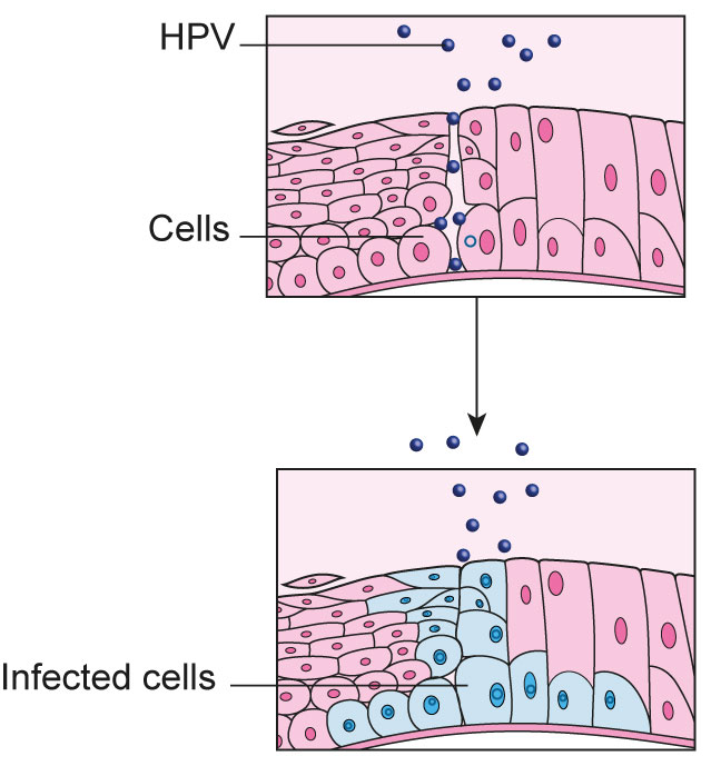 hpv squamous epithelial cells)