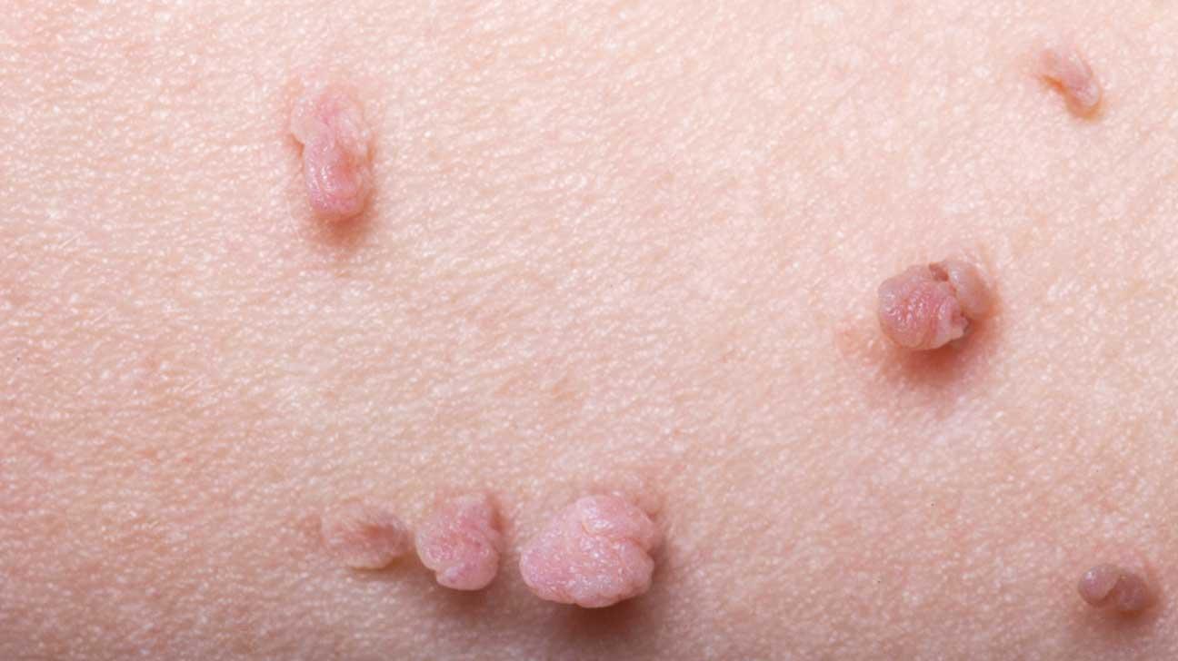 papilloma skin nhs)