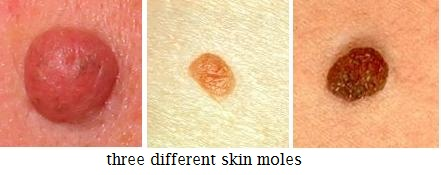 papilloma and moles)