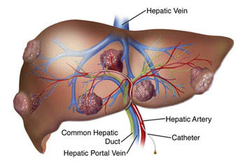 cancer hepatic este