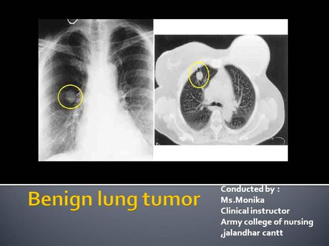 benign cancer in lungs)