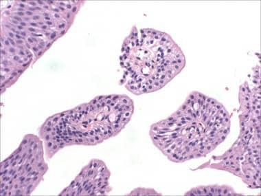 urothelial papilloma patho