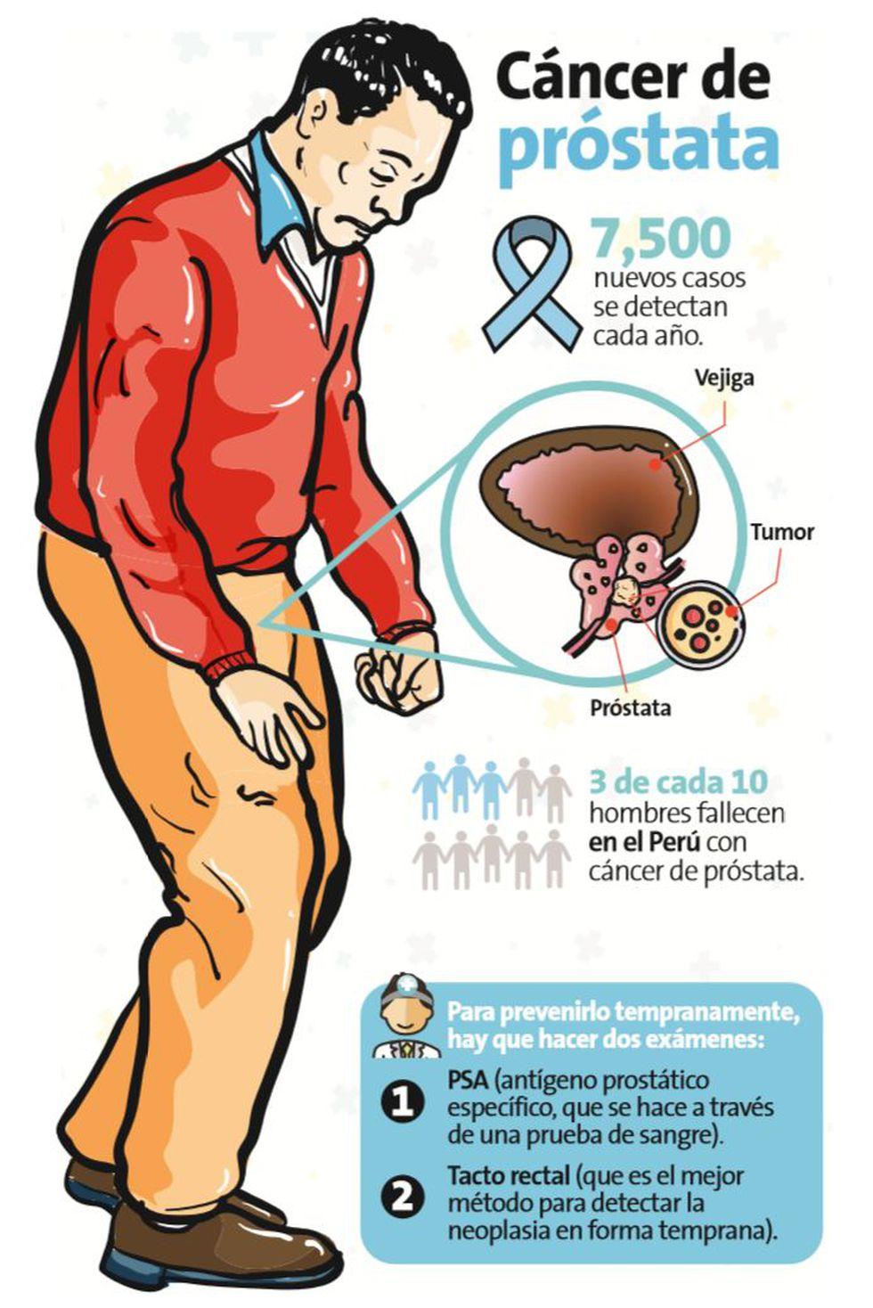 cancer de prostata como se detecta