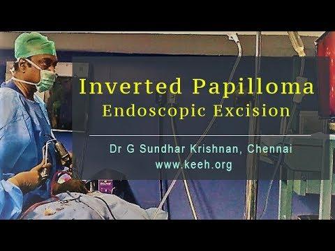 operation papillomavirus enceinte)