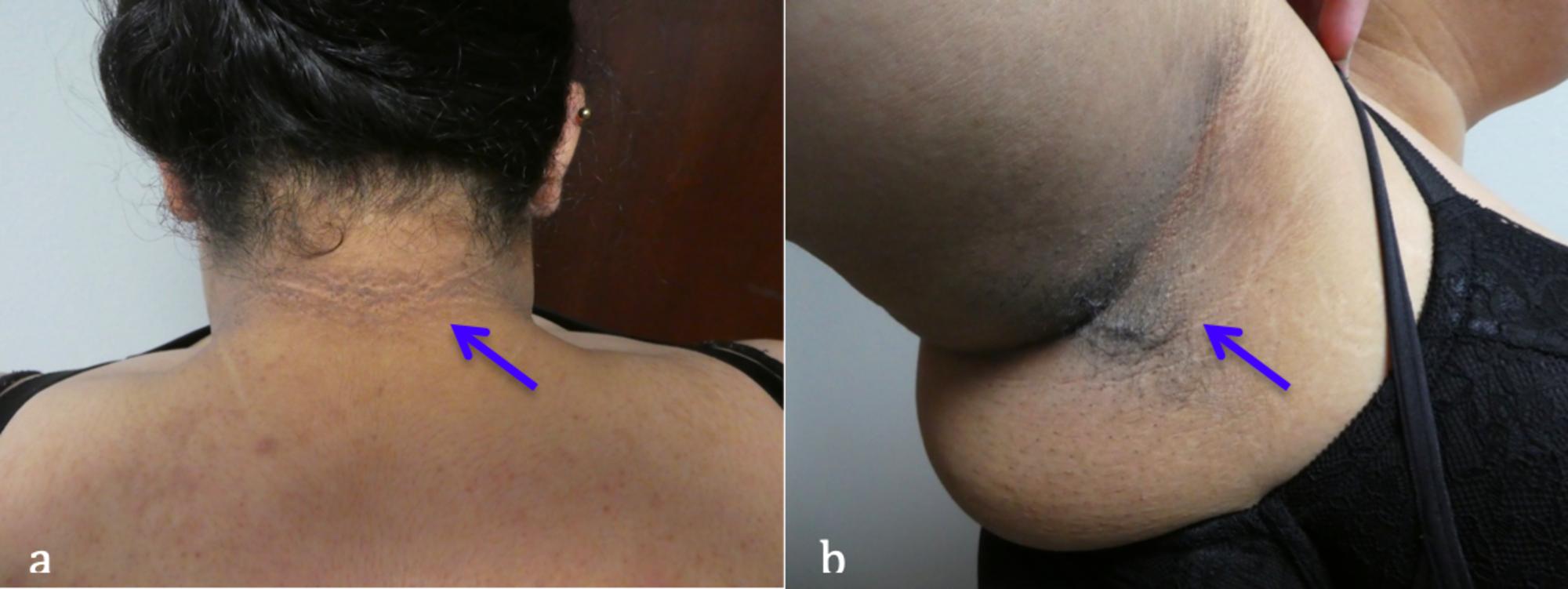 ductal papilloma lump papilloma virus tumore vescicale