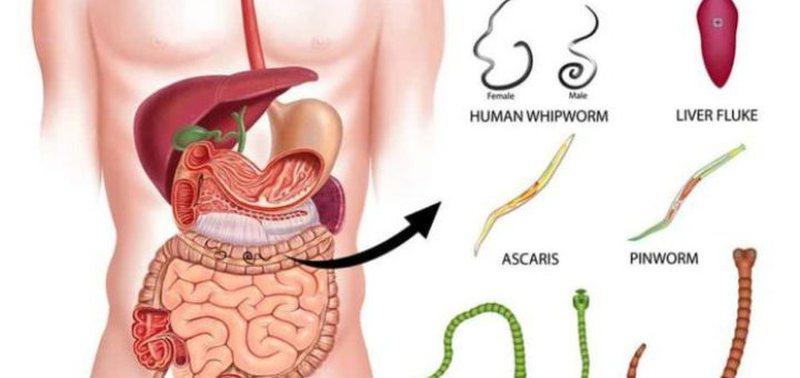 Tratamentul negilor cu usturoi