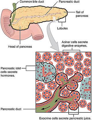 cancer pancreatique neuroendocrine