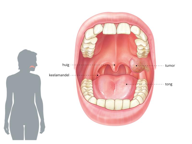 hpv virus keel symptomen