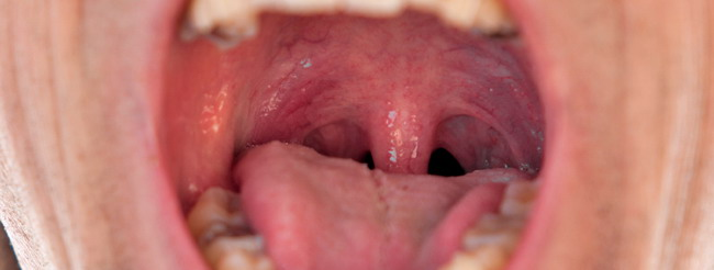 Papiloma humano en garganta sintomas